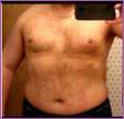 35 percent body fat - Male