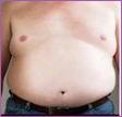 40 percent body fat - Male